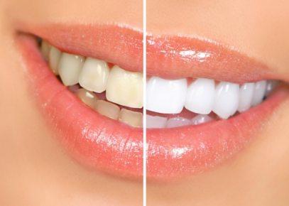 Відбілювання зубів: за і проти